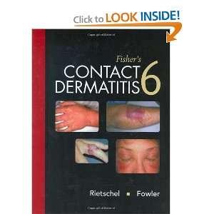 ) (9781550093780) Robert L. Rietschel, Joseph F. Fowler Books